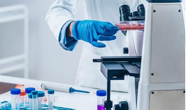 17-α-羟孕酮的临床检测意义