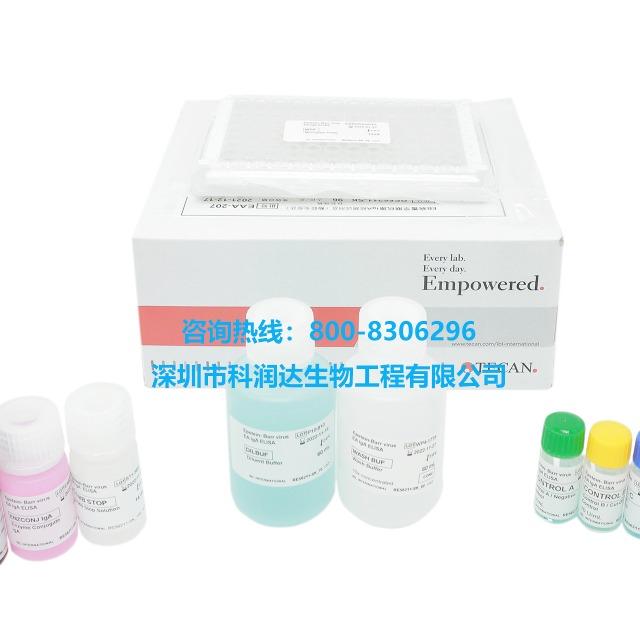 EB病毒衣壳检测试剂盒(EVA-IgA)