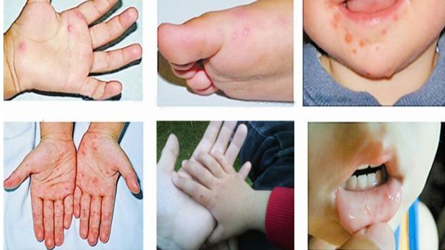 柯萨奇病毒IgM试剂盒在手足口病防治中的应用